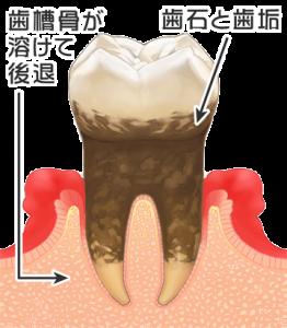 歯周病後期