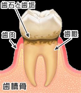 歯周病初期