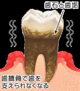 歯周病末期