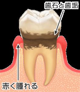 歯周病中期